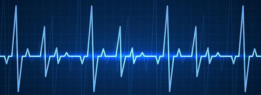 bigstock-ekg-blue-sinusoidal-pulse-lin-352304804
